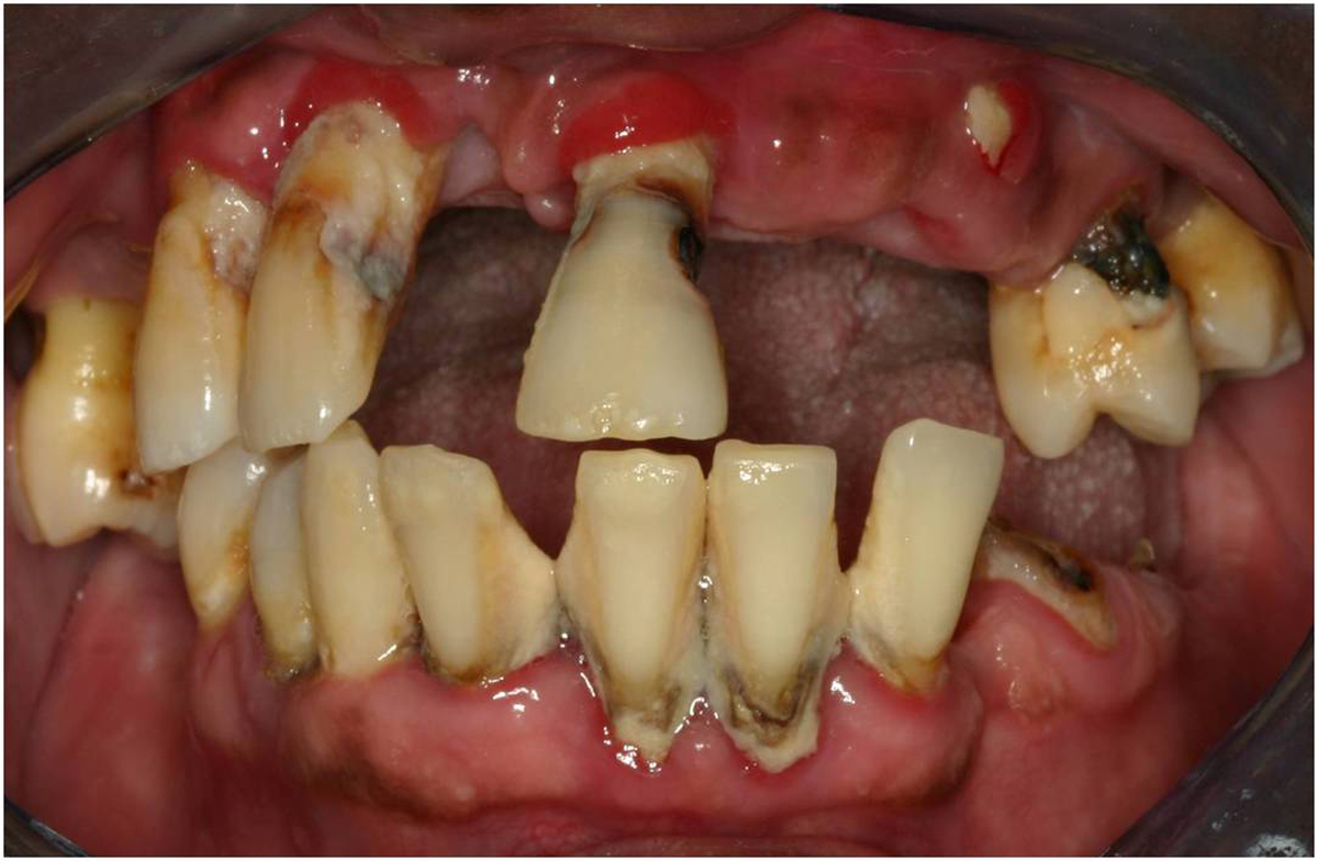 All About Tooth Infection And How To Go About It